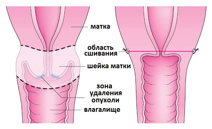 seks-svingeri-gruppovoy-onlayn
